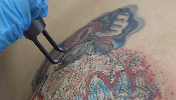 Vale a pena remover uma tatuagem?